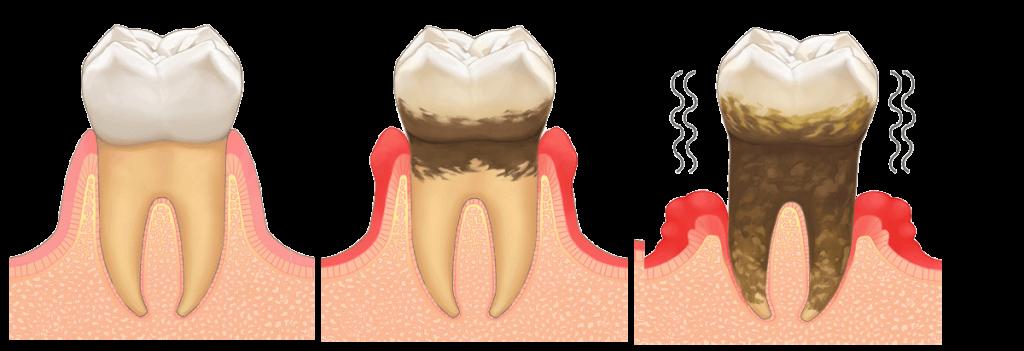 歯周病にならないために